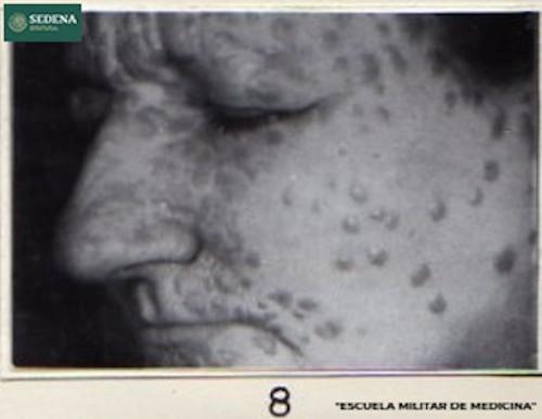 Imagen de Lesiones de etapa 2 de sífilis en el rostro (atribuido)