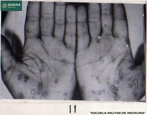 Imagen de Lesiones de etapa 1 de sífilis en las manos (atribuido)