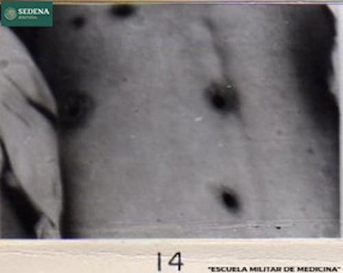 Imagen de Lesiones de etapa 1 de sífilis en la espalda (atribuido)