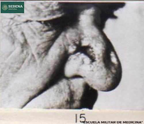 Imagen de Lesión de etapa 3 de sífilis en la nariz de un paciente de la tercera edad (atribuido)