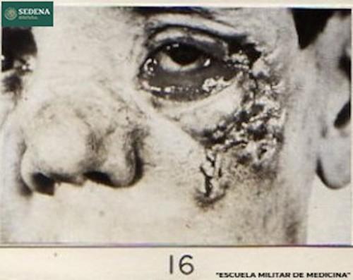 Imagen de Rostro de un paciente en etapa 3 de sífilis (atribuido)