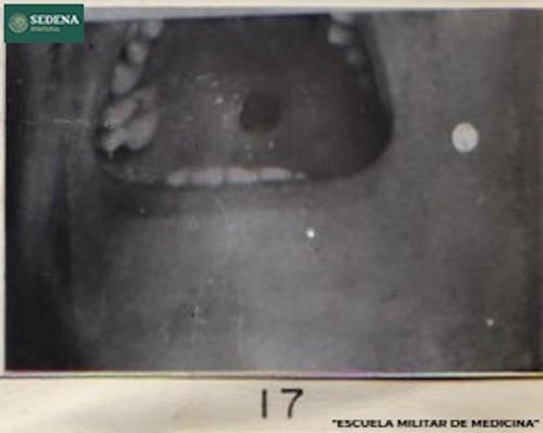 Imagen de Lesión de etapa 1 de sífilis en el paladar (atribuido)