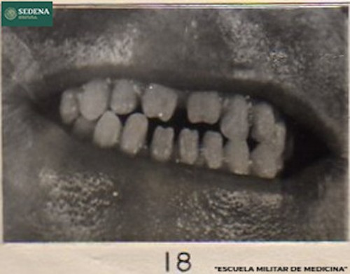 Imagen de Boca de un paciente entrando a etapa 2 de sífilis (atribuido)